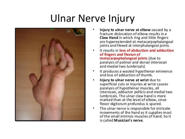 ulnar nerve - photo #15
