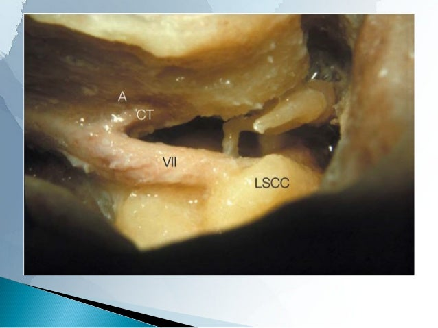 It is formed by the –  tympanic branch of the glossopharyngeal nerve (Jacobson's nerve) and  –  caroticotympanic nerves, ...