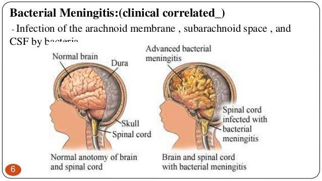 Anatomy of meninges(anatomy)