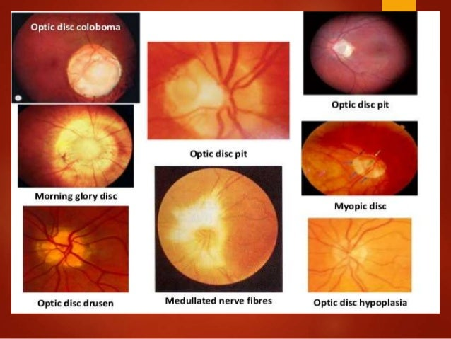 anatomy of optic nerve blood supply amp clinical significance