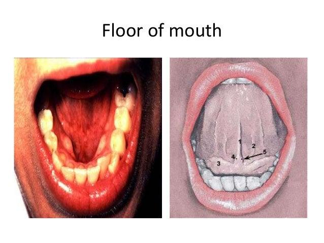 Oral cavity salivary gland anatomy kathryn boyce for Floor of mouth