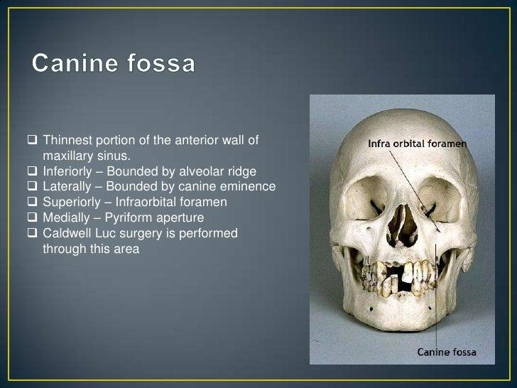 Anatomy of para nasal sinuses