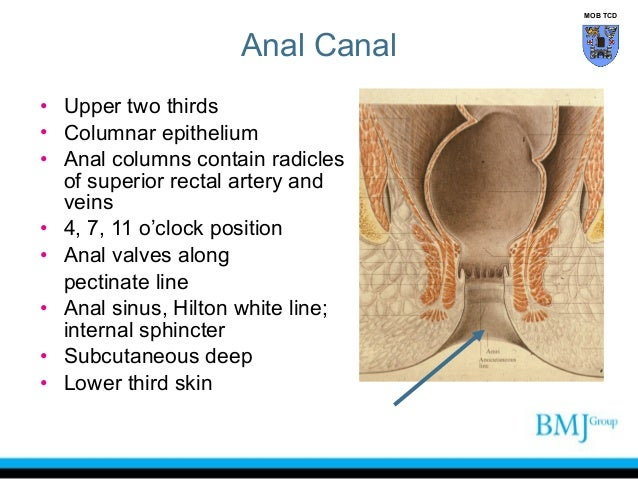 white line of anal canal blockage
