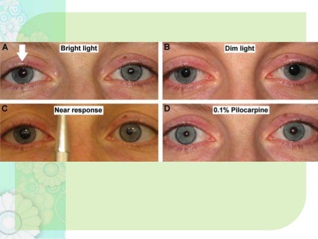 Anatomy Of Pupillary Pathways