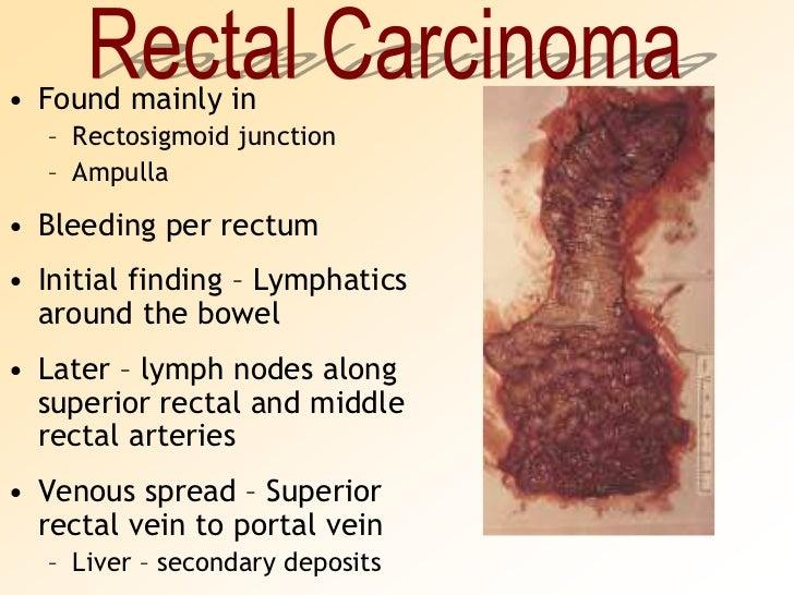 Rectosigmoid junction anatomy