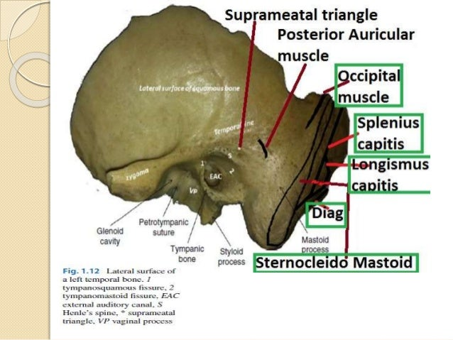 Anatomy of temporal bone By Dr.Vijay kumar , AMU