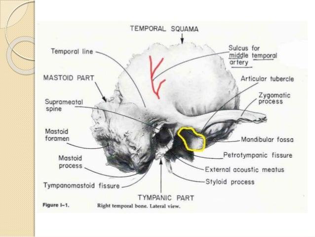 Anatomy of temporal bone By Dr.Vijay kumar , AMU