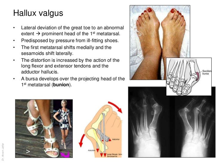 Anatomy of the ankle and joints of foot