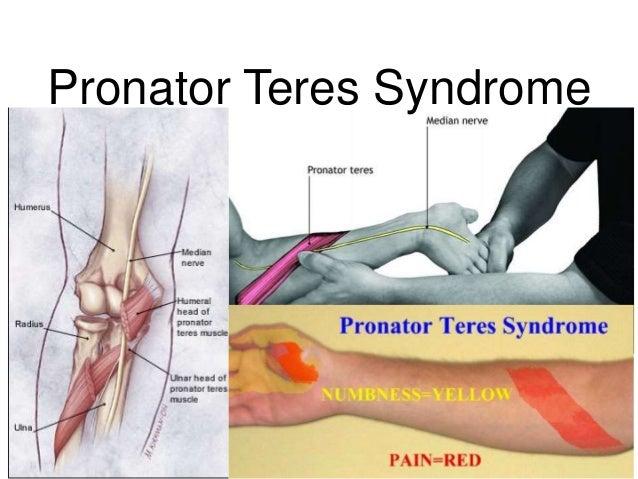 Pronator Teres | tenderness.co - 79.8KB
