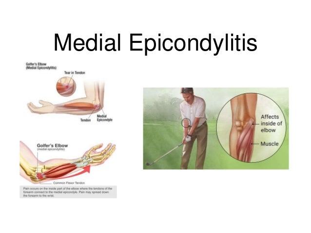 medial epicondylitis steroid injection