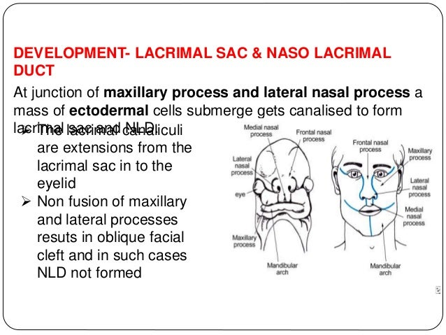 DEVELOPMENT- LACRIMAL SAC & NASO LACRIMAL DUCT At junction of maxillary process and lateral nasal process a mass of ectode...