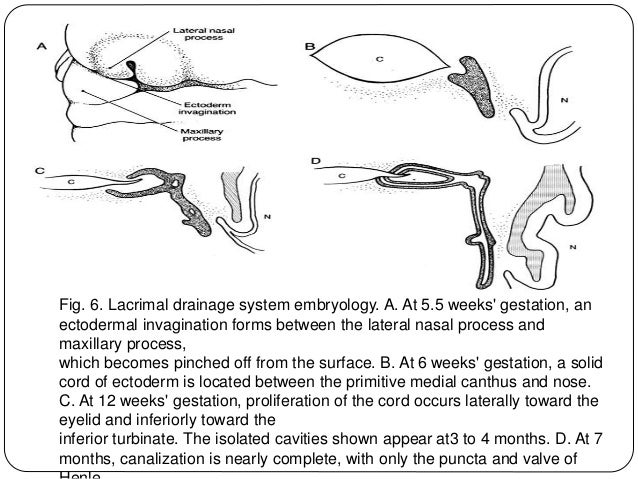 Fig. 6. Lacrimal drainage system embryology. A. At 5.5 weeks' gestation, an ectodermal invagination forms between the late...