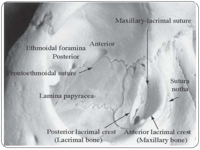  The medial orbital wall : Frontal process of maxilla, lacrimal ,ethmoid , lesser wing of sphenoid bone.  The frontoethm...