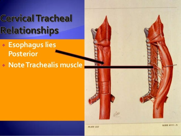 ANATOMY OF TRACHEA & TRACHEOSTOMY