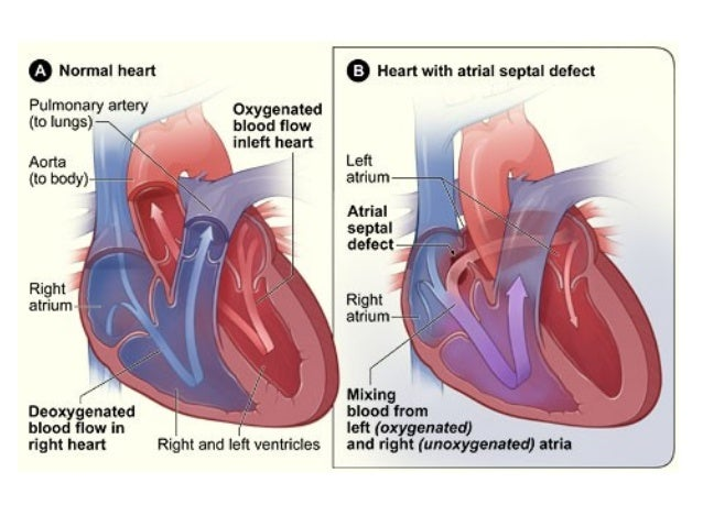 Anatomy Unit 2 Notes: Blood Pressure & Heart Disorders