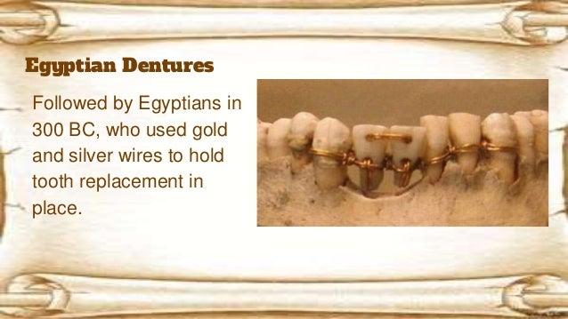 History Of Dentures