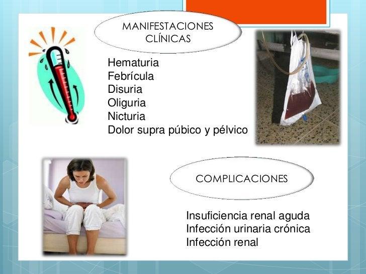 MANIFESTACIONES     CLÍNICASHematuriaFebrículaDisuriaOliguriaNicturiaDolor supra púbico y pélvico                 COMPLICA...