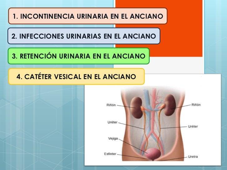 1. INCONTINENCIA URINARIA EN EL ANCIANO2. INFECCIONES URINARIAS EN EL ANCIANO3. RETENCIÓN URINARIA EN EL ANCIANO 4. CATÉTE...
