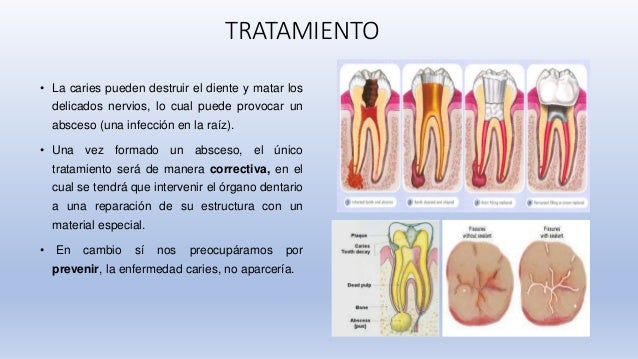 Epidemiolog a de la caries dental en america latina