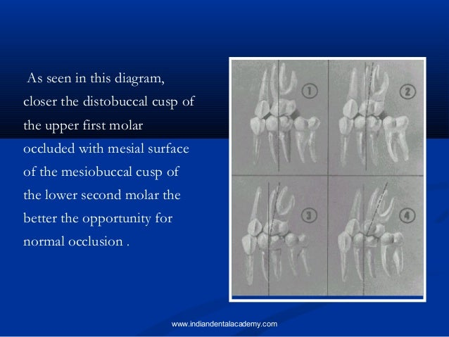 andrews six keys to normal occlusion pdf