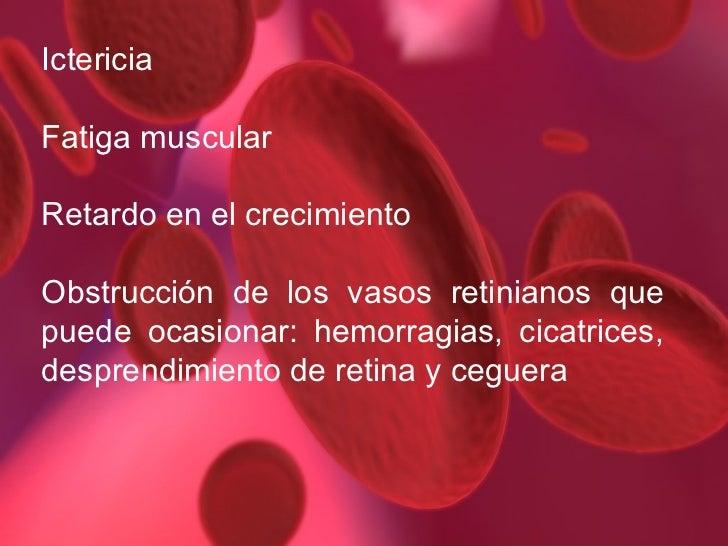 La escoliosis el tratamiento sheyno de pecho