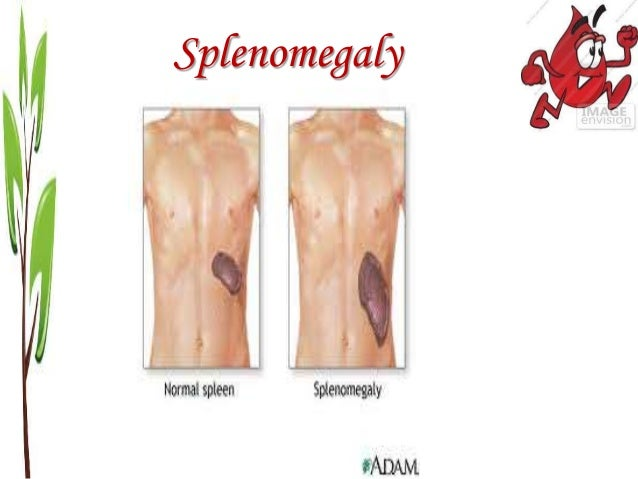 anemia medlineplus autos post