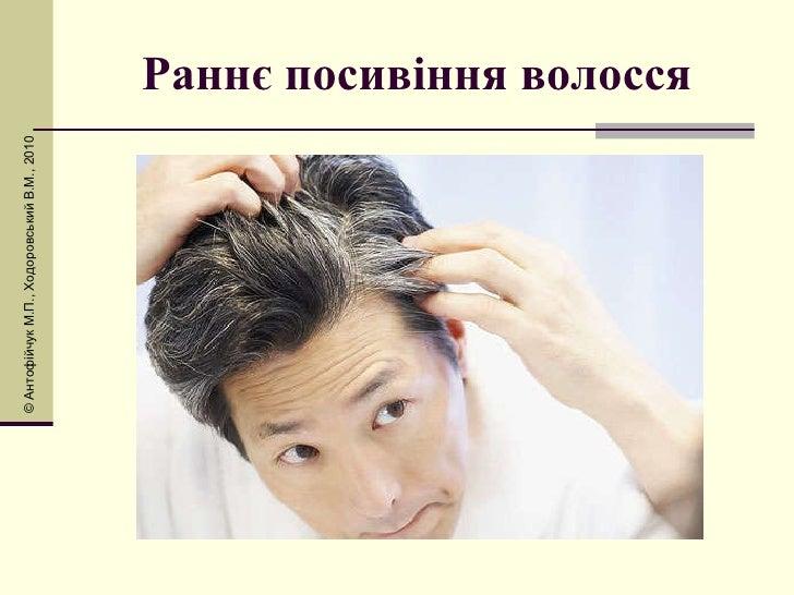 Раннє посивіння волосся © Антоф і йчук М.П., Ходоровський В.М., 2010