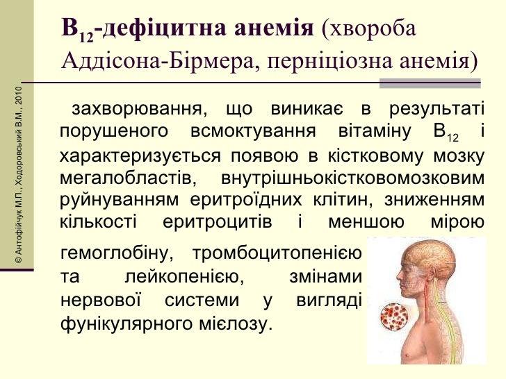 В 12 -дефіцитна анемія  (хвороба Аддісона-Бірмера, перніціозна анемія) <ul><li>захворювання, що виникає в результаті поруш...