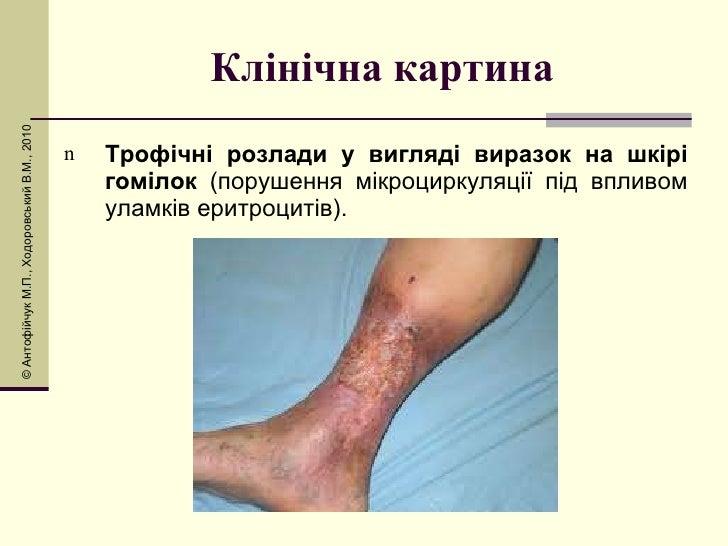 Клінічна картина <ul><li>Трофічні розлади у вигляді виразок на шкірі гомілок  (порушення мікроциркуляції під впливом уламк...