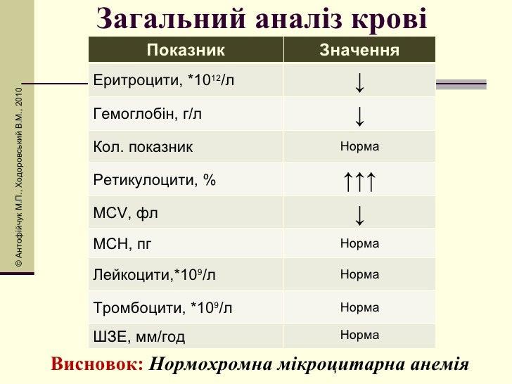 Загальний аналіз крові Висновок:  Нормохромна мікроцитарна анемія © Антоф і йчук М.П., Ходоровський В.М., 2010 Показник Зн...