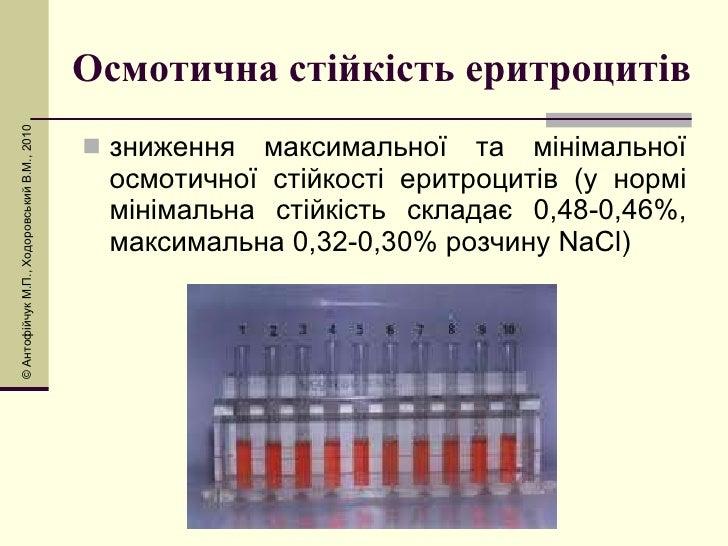 Осмотична стійкість еритроцитів <ul><li>зниження максимальної та мінімальної осмотичної стійкості еритроцитів (у нормі мін...