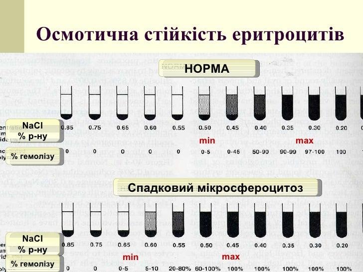 Осмотична стійкість еритроцитів NaCl %  р-ну %  гемол і зу NaCl %  р-ну %  гемол і зу НОРМА Спадковий мікросфероцитоз min ...