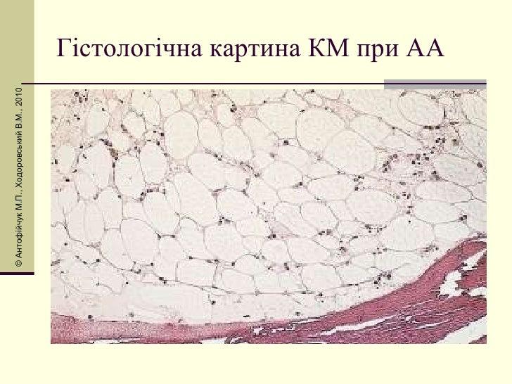 Гістологічна картина КМ при АА © Антоф і йчук М.П., Ходоровський В.М., 2010