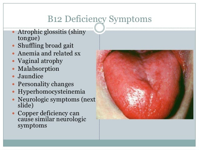 Anemia classification clinical feature treatment B12 Deficiency Tongue