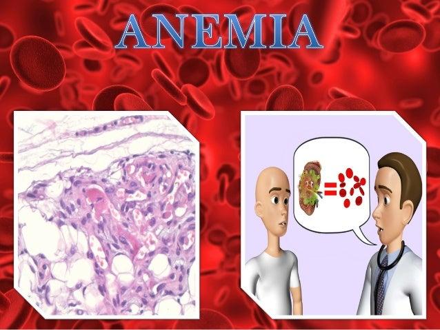 Signos y síntomas dependen del grado de la anemia y de la velocidad con la que se produjo. Se desarrollan por: •Disminució...