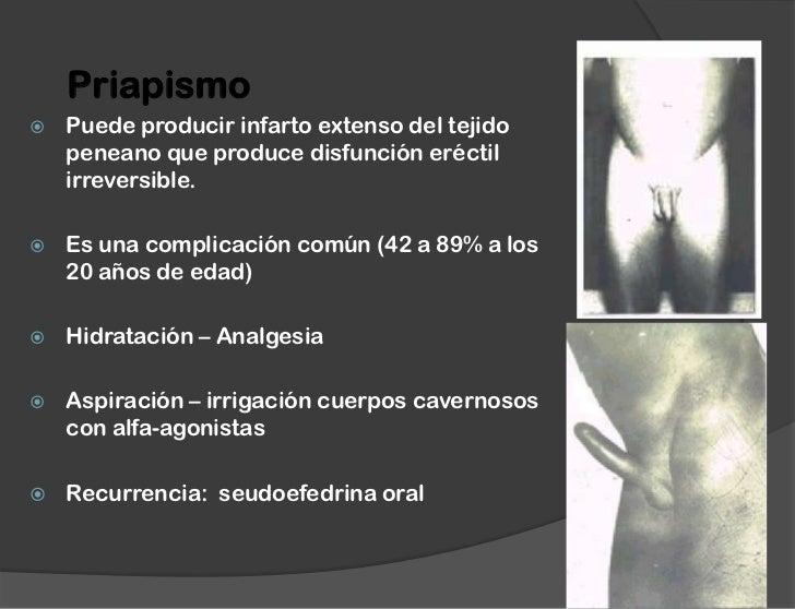 Ultrasonoro sonografiya sheynogo del departamento