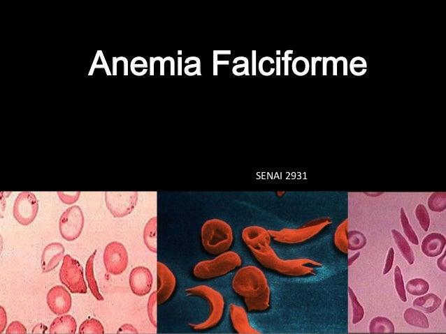 Anemia FalciformeSENAI 2931