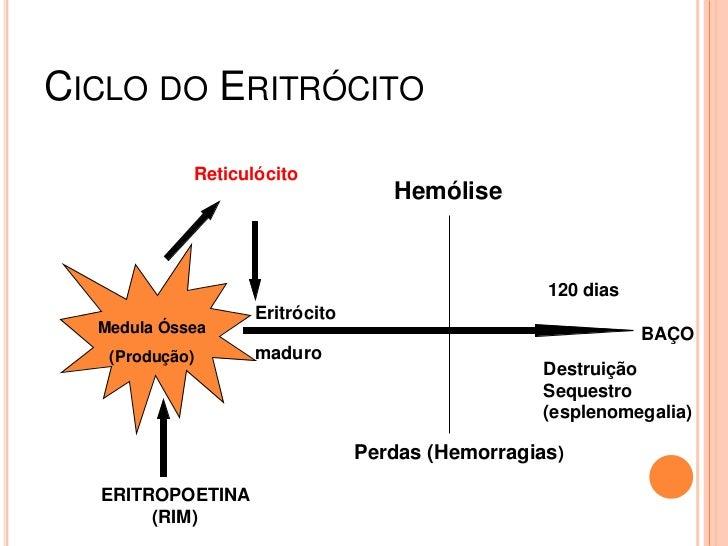 Anemia hemolitica Slide 2