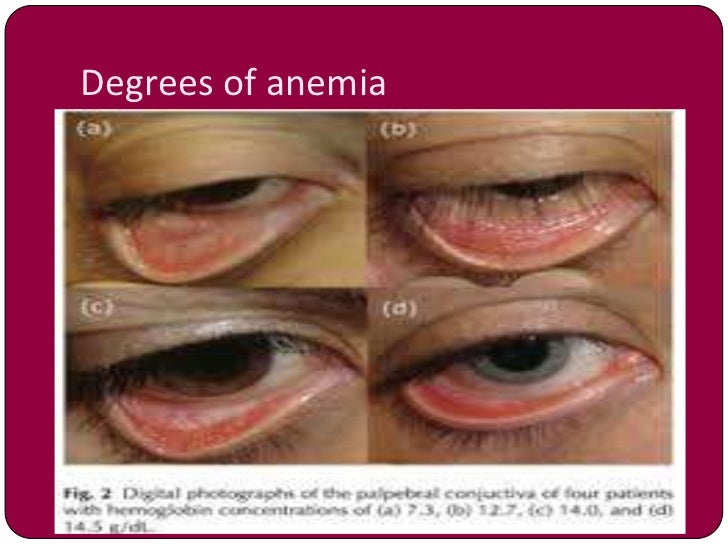 anemia in pregnancy by dr shabnam naz