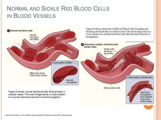 NORMAL AND SICKLE RED BLOOD CELLS IN BLOOD VESSELS 43 Figure A shows normal red blood cells flowing freely in a blood vess...