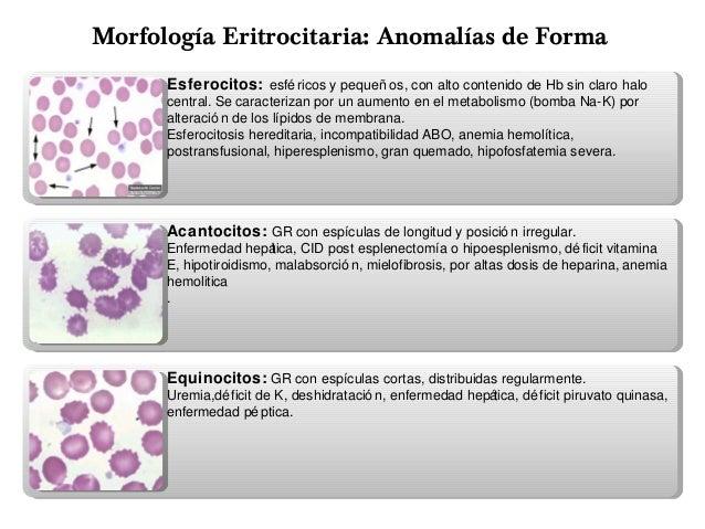 anemias pediatria 638 x 479 · jpeg