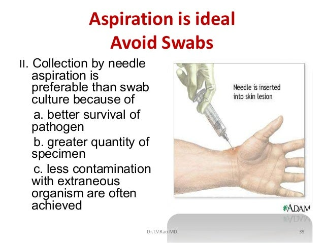 Aspiration is ideal               Avoid SwabsII. Collection by needle  aspiration is  preferable than swab  culture becaus...