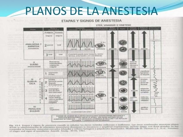 Anestesia general for Clasificacion de los planos arquitectonicos
