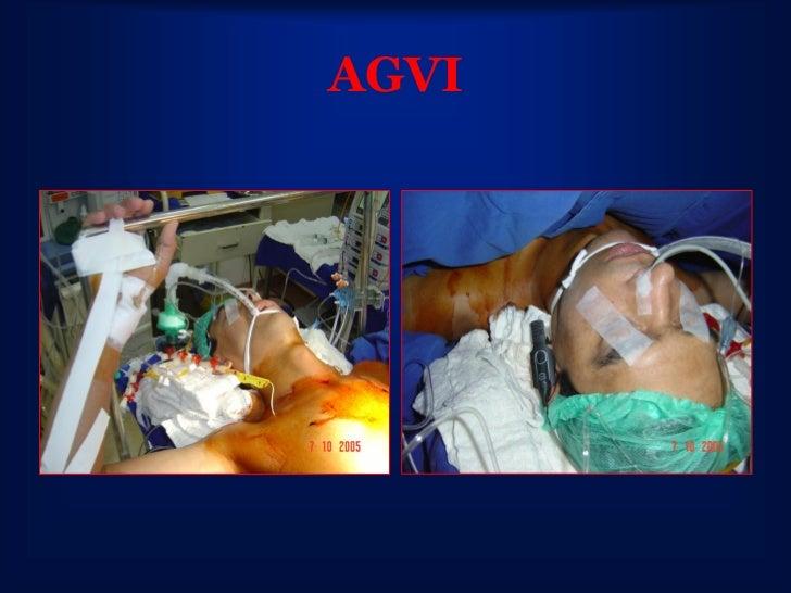 Anestesia Alvo Controlada• Maior Estabilidade  Hemodinâmica• Maior Estabilidade  Profundidade Anestésica• Maior Previsibil...