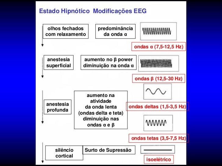 Farmacodinâmica Propofol            SNC• Depressão atividade  eletoencefalográfica dese dependente  chegando à abolição.• ...