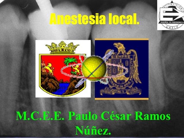 Anestesia local.M.C.E.E. Paulo César Ramos          Núñez.