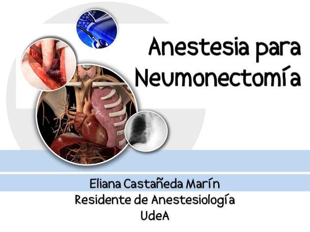 Generalidades   Evaluación preOP    Manejo IntraOP   Manejo POP: Analgesia-complicacionesConclusiones