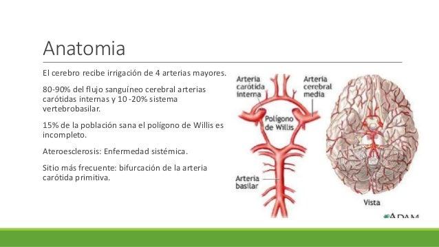 Anestesia para endarterectomia carotidea