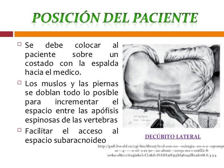 Anestesia raquídea y peridural Slide 3