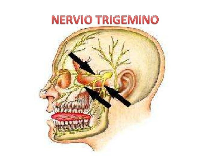 NERVIO TRIGEMINO<br />